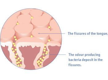 Uma boa higiene oral é o melhor tratamento para o mau hálito