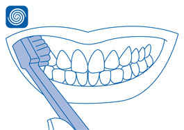 Dentes superiores
